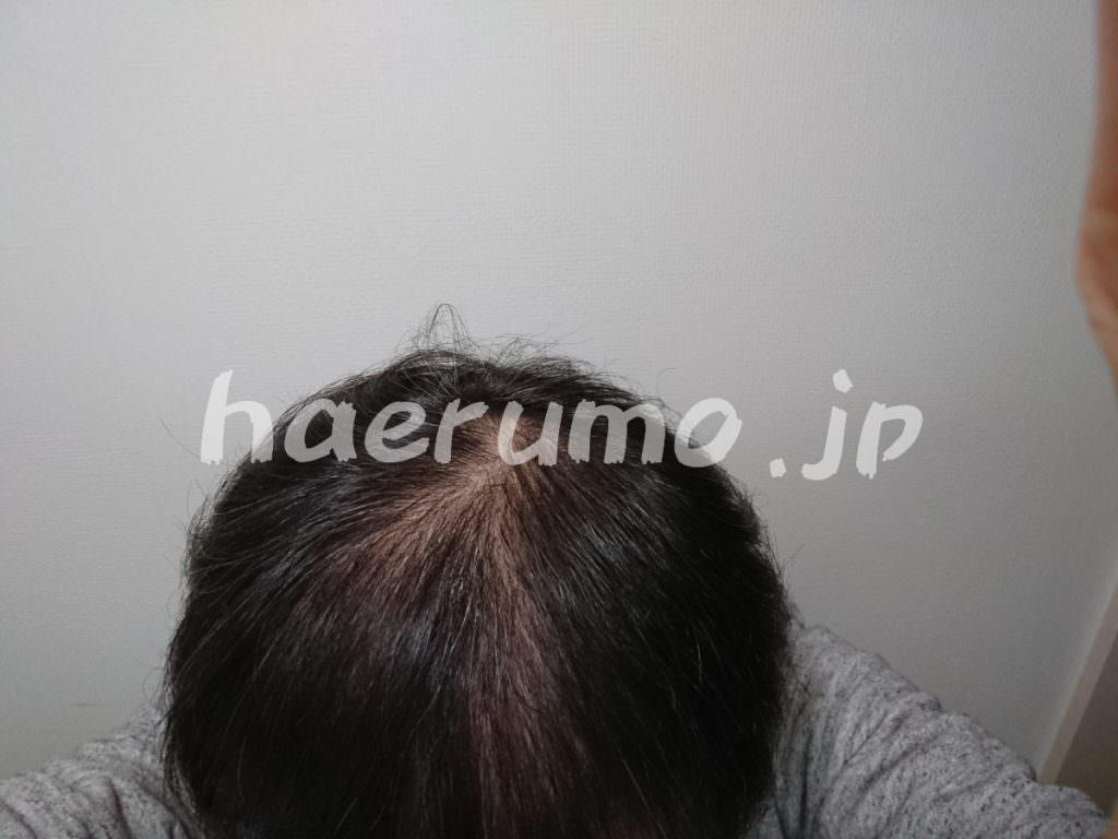 【ハゲ画像】峯岸ジルの薄毛改善方法と方針【育毛40代】