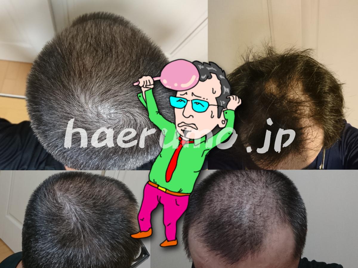 ハゲ画像│心機一転0ヶ月目の頭部
